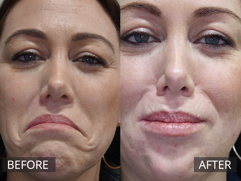 Anti Wrinkle Injections Melbourne  The DOC Clinic