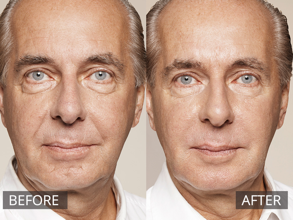 Dermal Fillers - Non Invasive Cosmetic Skin Treatments