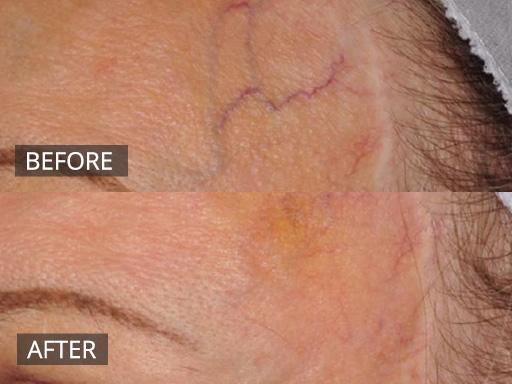 Facial Veins Non Invasive Cosmetic Skin Treatments