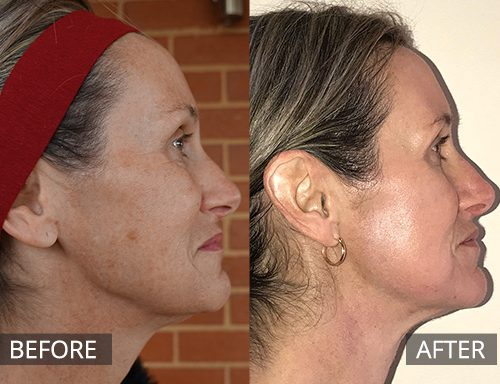 fraxel laser - before and after image 029 - normal size