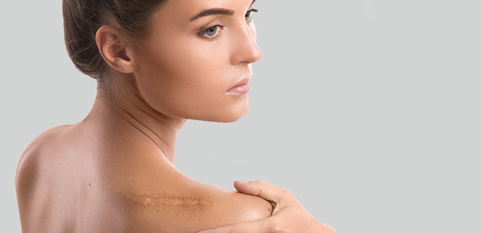 keloid scar removal treatment at The DOC Clinic