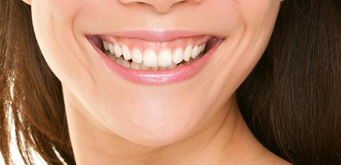 gummy smile - The DOC Clinic Melbourne