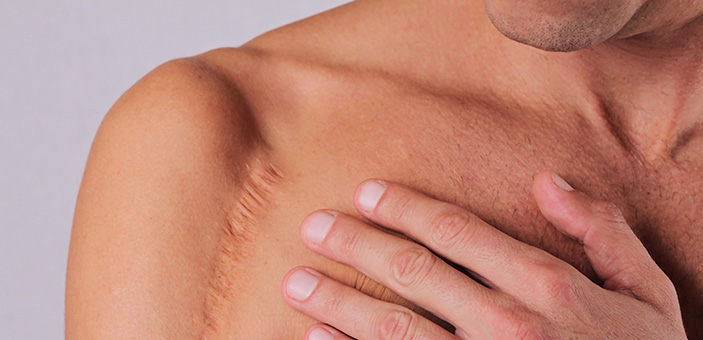 scar removal procedure at The DOC clinic in Melbourne