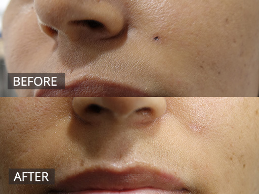 laser mole removal - the doc - before and after 001