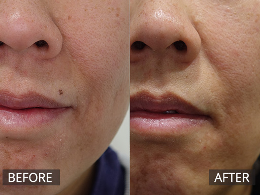 laser mole removal - before and after 003