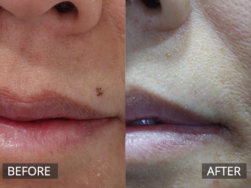 laser mole removal - before and after 005