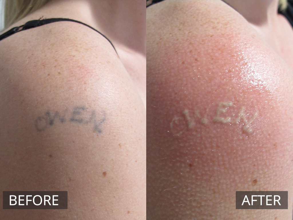 Laser Tattoo Removal Melbourne | The DOC Clinic Hoppers Crossing