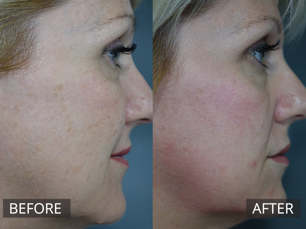 Fraxel Laser Treatments Melbourne | The DOC Clinic