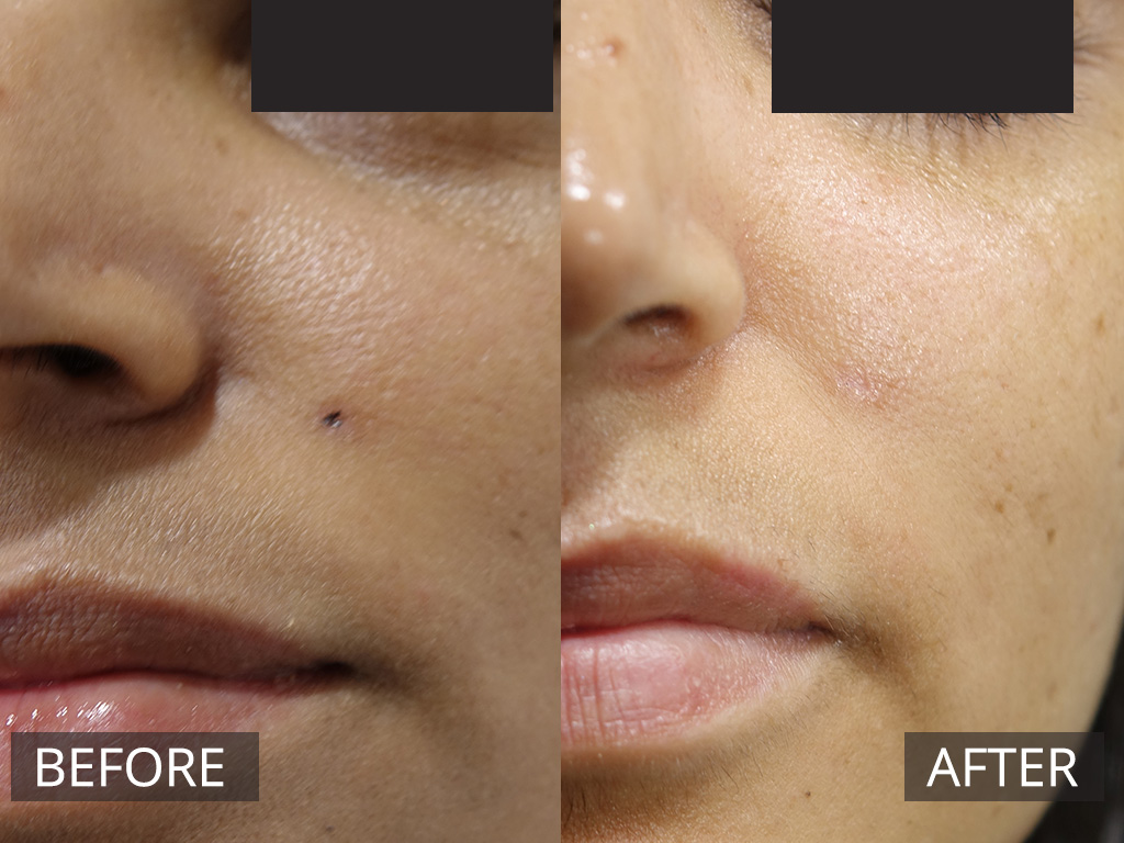 Laser Mole Removal Melbourne | The DOC Cosmetic & Laser Clinic