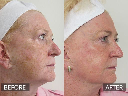 fraxel laser - before and after image 033a