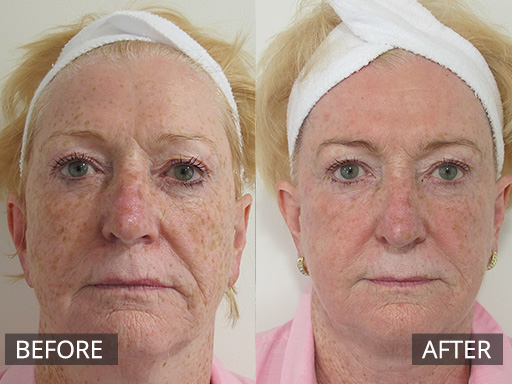 fraxel laser - image 033 - before and after