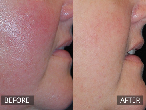 genesis laser - before and after image 042