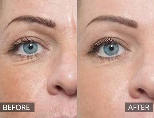 laser genesis - before and after 043