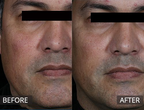 laser genesis - The DOC - before and after image 043