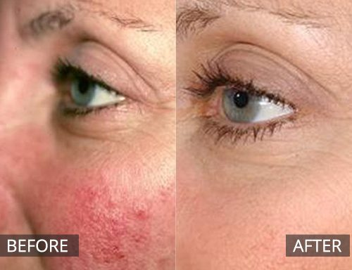 laser genesis - before and after image 044