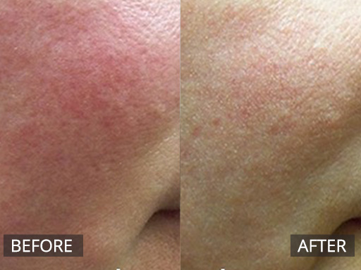 laser genesis - before and after image 045