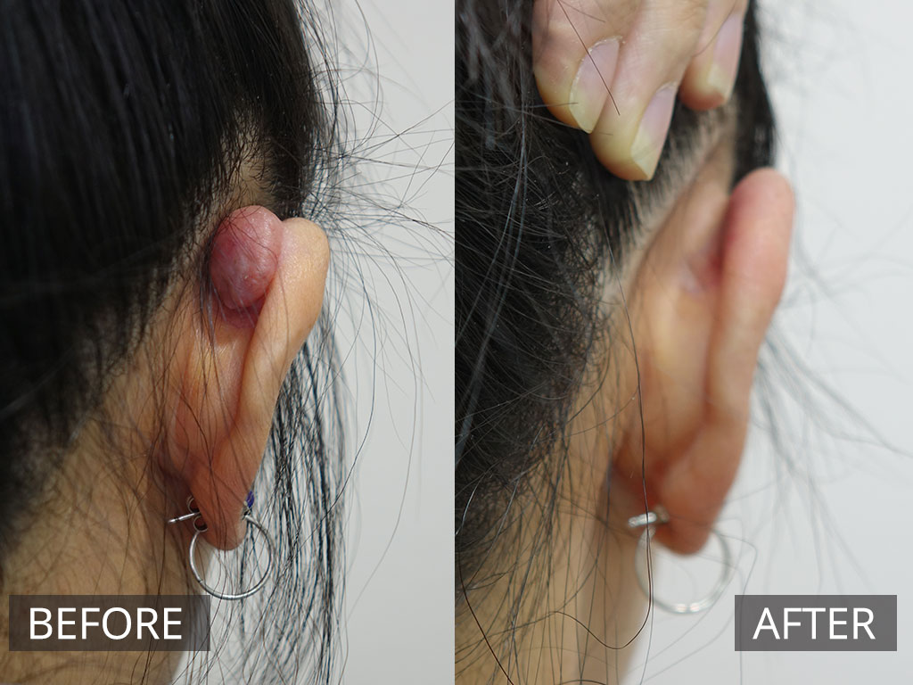 Keloid Scar Removal Treatment | The DOC Clinic Melbourne