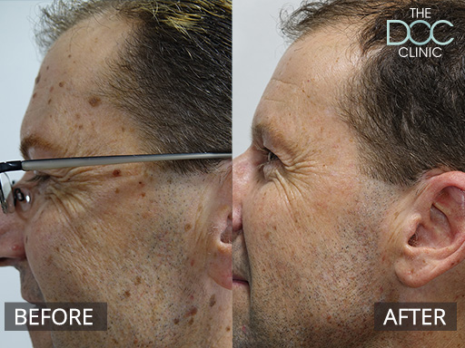 Skin Mole Removal in Melbourne   The DOC Cosmetic Clinic