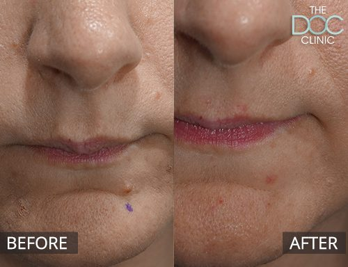Skin Mole Removal in Melbourne | The DOC Cosmetic Clinic