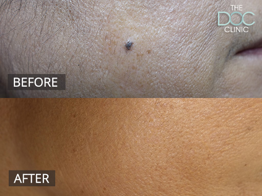 Radio Frequency Mole Removal Treatment | The DOC Clinic