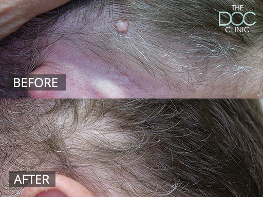 Radio Frequency Mole Removal Treatment   The DOC Clinic