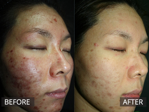 Healite Ii Non Invasive Cosmetic Skin Treatments