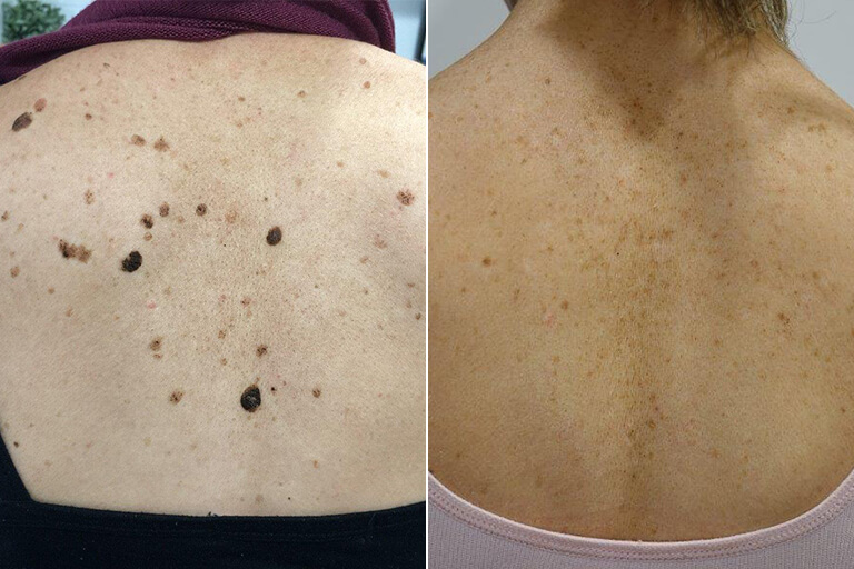 Removing Moles, What You Need to Know - before and after image
