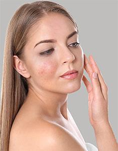 Acne Medical Management