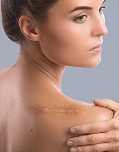 Effective Keloid Scar Removal
