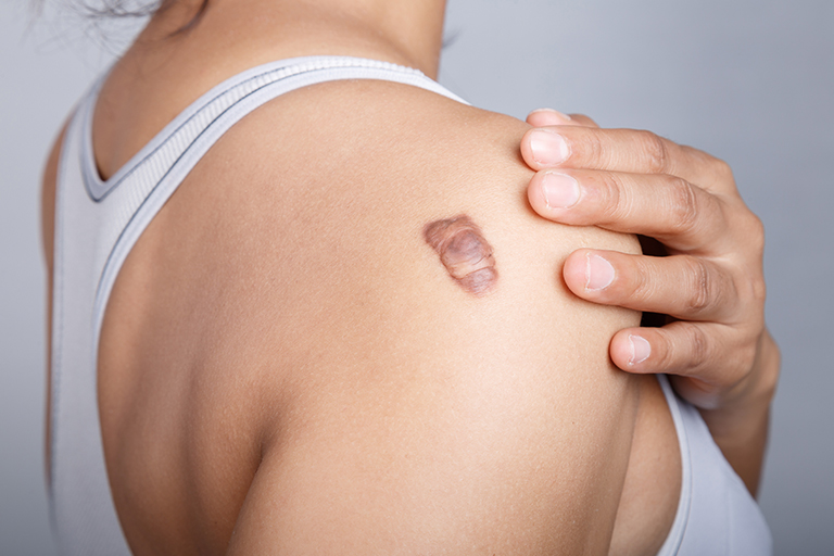 Keloid scarring facts, keloid scar on the right shoulder, model image 01